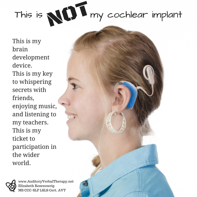 Hearing Aids Are Music To The Ears Of This Concert Violinist: FREE POSTER: This Is NOT My Cochlear Implant